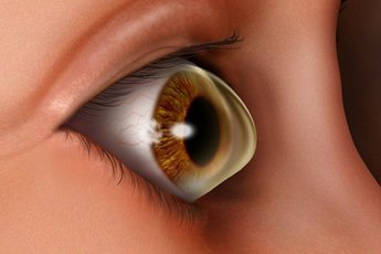 Можно ли ослепнуть при кератоконусе?