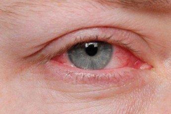 Пять причин покраснения глаз
