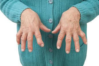 Йога уменьшает тяжесть ревматоидного артрита
