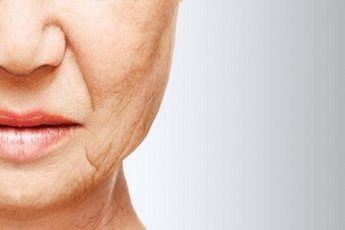 Эффективные маски и массаж, способные избавить от брылей