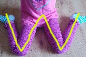 W-образная поза при сидении: почему она опасна для детей