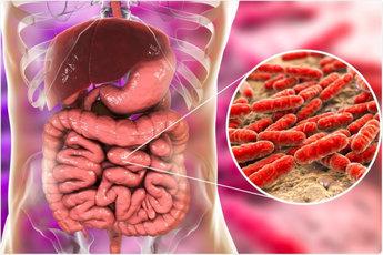 Врачи подтверждают, что дисбактериоз возникает при постоянных стрессах и физической усталости