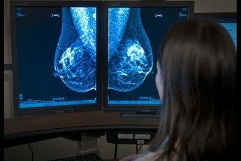 Основной признак филлоидной опухоли - комок в груди