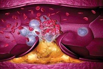 Врачи назвали 7 признаков образования тромба