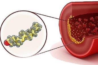Спасёт ли соя от холестерина?
